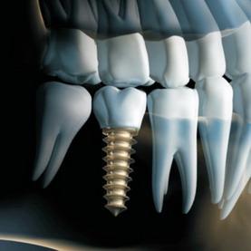 Implantai ir protezavimas