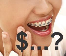 Kiek kainuoja dantų breketai?