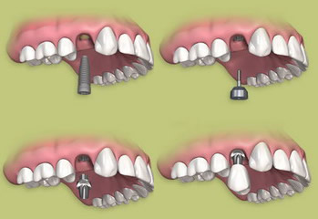Dantų implantacijos procedūra