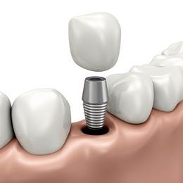 Implantai žmonėms neturintiems dantų